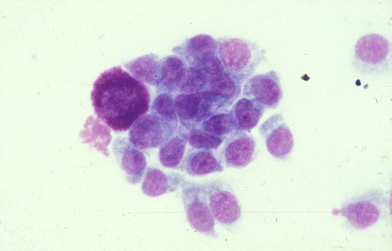 Untersuchung einer zytologischen Probe