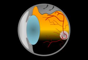 Netzhaut – Retinopexie