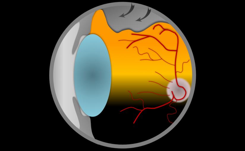 Netzhaut Retinopexie