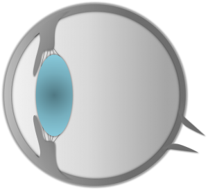 Linsenluxation