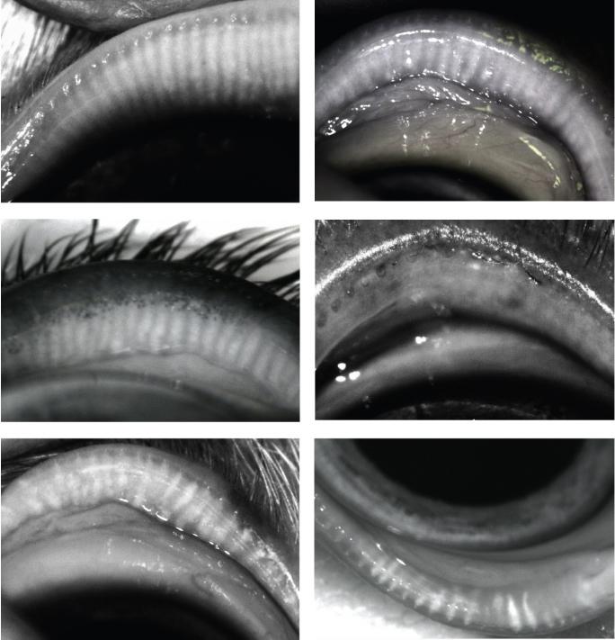 Meibography Vorschau